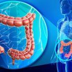 Рак кишечника (колоректальный рак). Лечение в Китае.